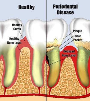 What is Periodontal Disease Garden City Kansas KS